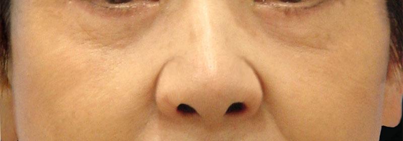 下眼瞼脱脂 治療後