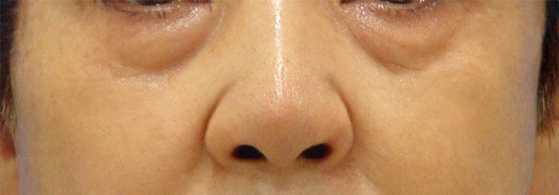 下眼瞼脱脂 治療前